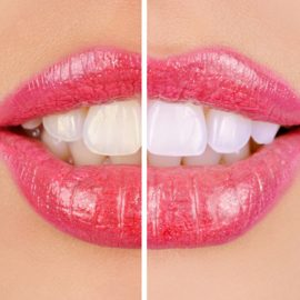Teeth Whitening your photographs with Adobe Photoshop